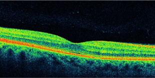 正常な黄斑部OCT画像