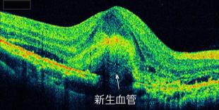 滲出型加齢黄斑変性症の黄斑部OCT画像(黄斑部網膜の下新生血管の塊を認めます)
