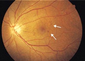 単純糖尿病網膜症の眼底写真