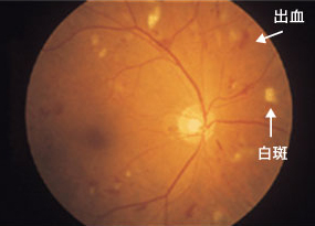 増殖前糖尿病網膜症の眼底写真