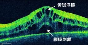 糖尿病黄斑浮腫の黄斑部OCT画像