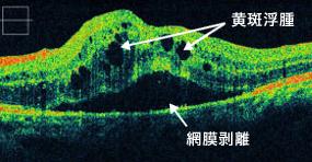 網膜静脈閉塞症による黄斑浮腫の黄斑部OCT画像