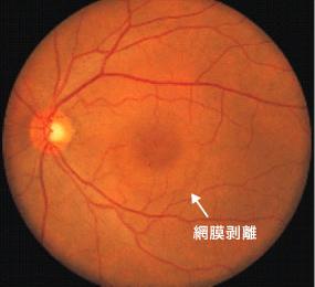 中心性漿液性脈絡網膜症の眼底写真