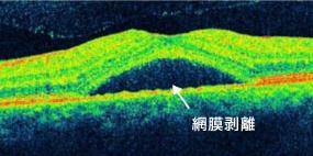 中心性漿液性脈絡網膜症の黄斑部OCT画像