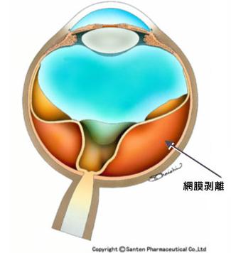 牽引性網膜剥離の模式図