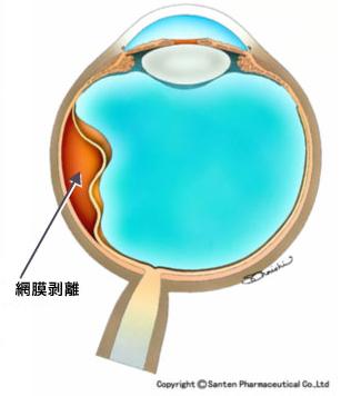 滲出性網膜剥離の模式図
