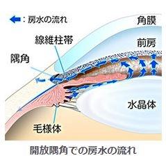 開放隅角緑内障、正常眼圧緑内障